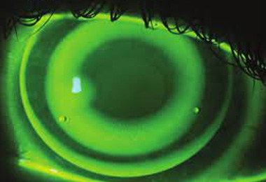 Intolerance rigid gas permeable lenses