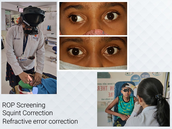 Pediatric Ophthalmology Eye Treatement