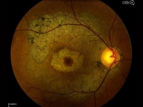 Bulls eye maculopathy