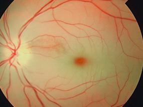 Retinal artery occlusion