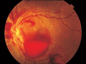 Retinal haemorrhage