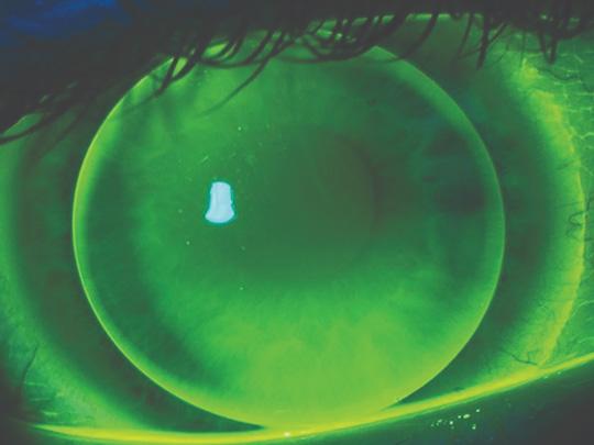 Rigid gas permeable lens
